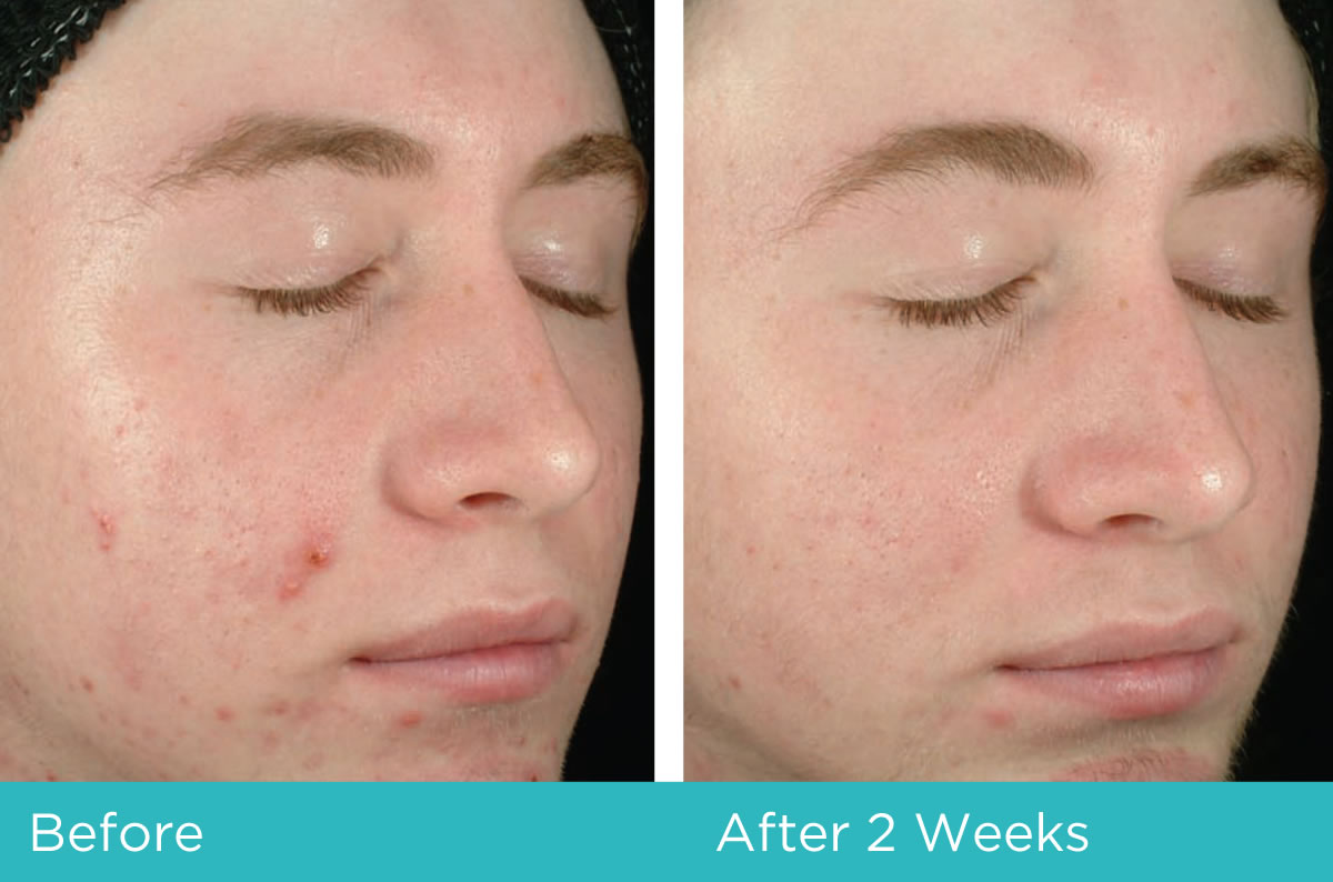 Acne Treatment before and after Clenziderm