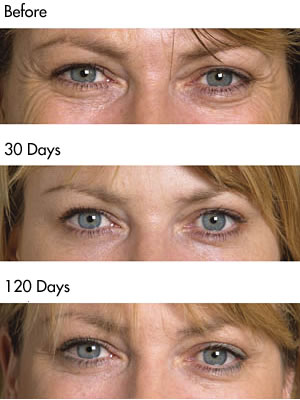Crows Feet Before and after photos