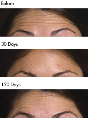 Forehead Lines before and after photos