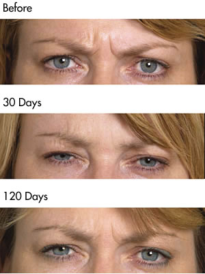 Frown Lines before and after photos