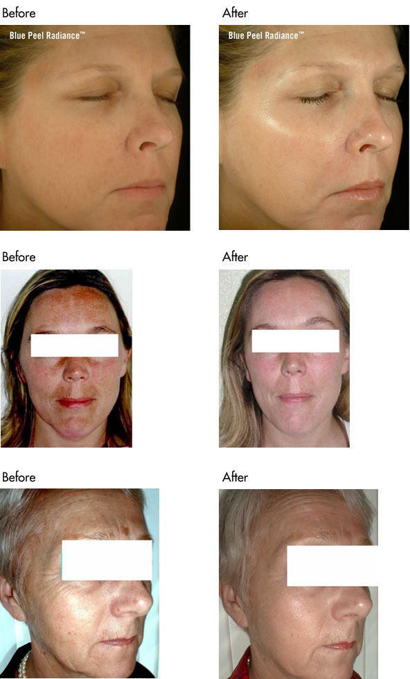 Skin Peel before and after photos