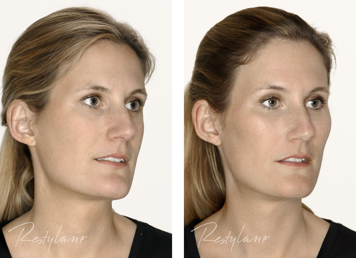 Dermal Fillers Cheek Enhancement before and after photo