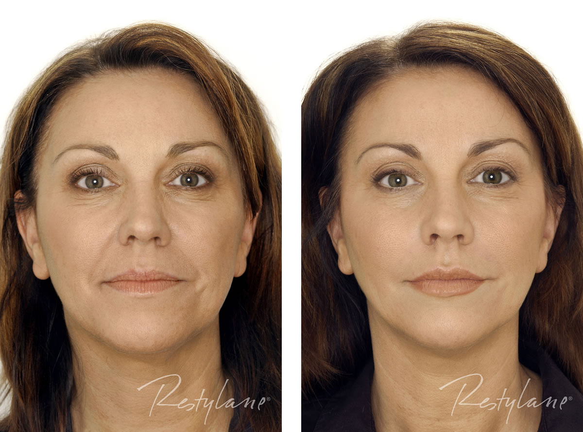 Dermal Fillers Full Face before and after