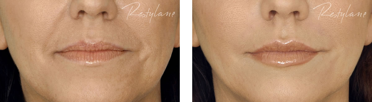 Dermal Filler Lips before and after